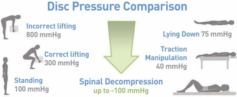 Spinal Decompression | Stanlick Chiropractic | Murfreesboro